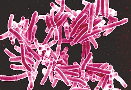 Health Warning: Antibiotic-Resistant Bacteria Breeding Here